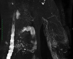 Lymphatic MRI showing drainage