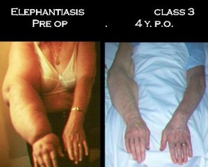 Even the 20 years long elephantiasis, with chronic infections, can be improved like in this case 4 years after LNT
