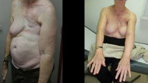 Outcome of an anlarged DIEP on a patient who suffered lymphoedema for 20 years after a mastectomy