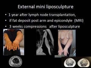External mini liposculpture