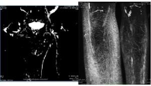 MRI linfático proporciona una mejor visualización de la anatomía del sistema linfático.