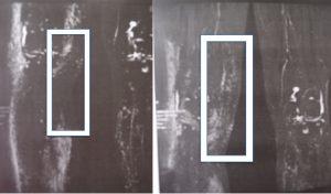 Linfo MRI que muestra el trasplante de ganglios en la rodilla