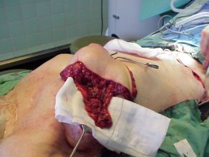 Modified DIEP transplant with lymph nodes