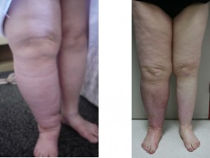 LNT works even in old leg lymphedema with chronic infections