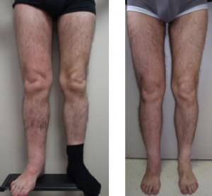 11 años de linfedema y resultado después de 12 meses de intervención LNT